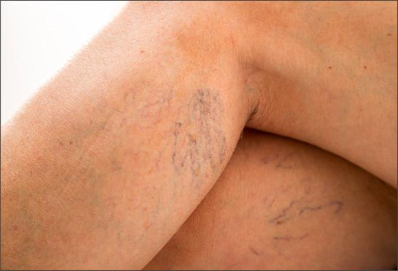 Imagen de Telangiectasia en la pierna