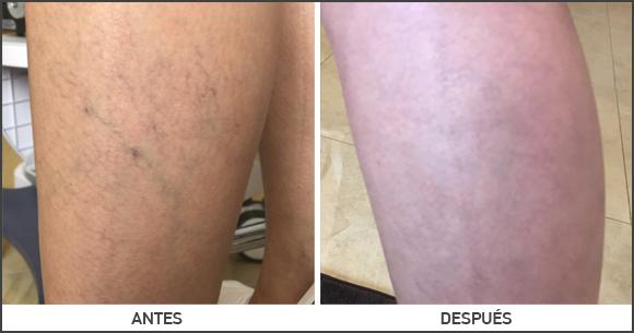 Imagen de Telangiectasia en la pierna antes y después de la operación