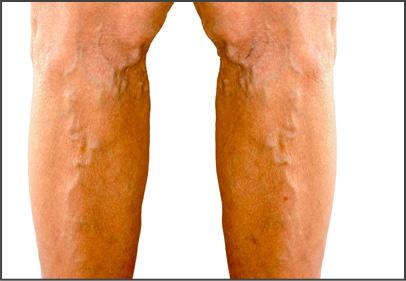 Váriz en las piernas